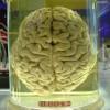 braineos